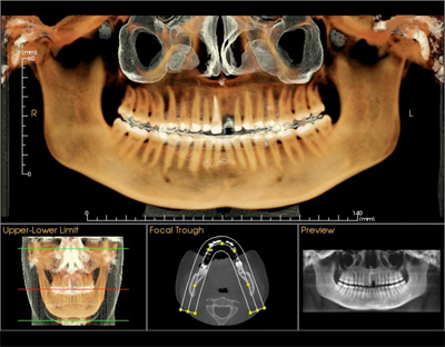 i-cat panoramic x-ray